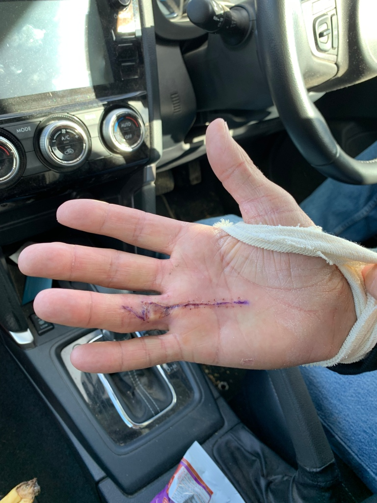 Dupuytren's contracture after surgery
